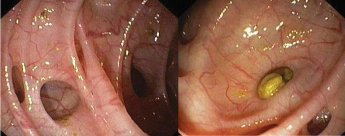 Дивертикулит толстого кишечника