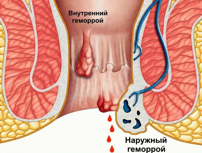 Наиболее распространенной причиной кровотечения из заднего прохода является геморрой