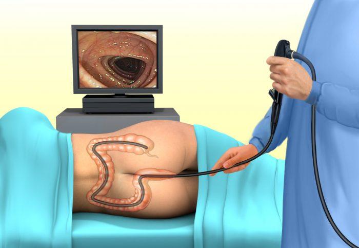 Ирригоскопия кишечника - основной метод для выявления причин кровотечения