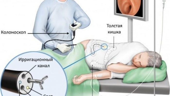 Колоноскопия является наиболее результативным методом исследования толстого кишечника