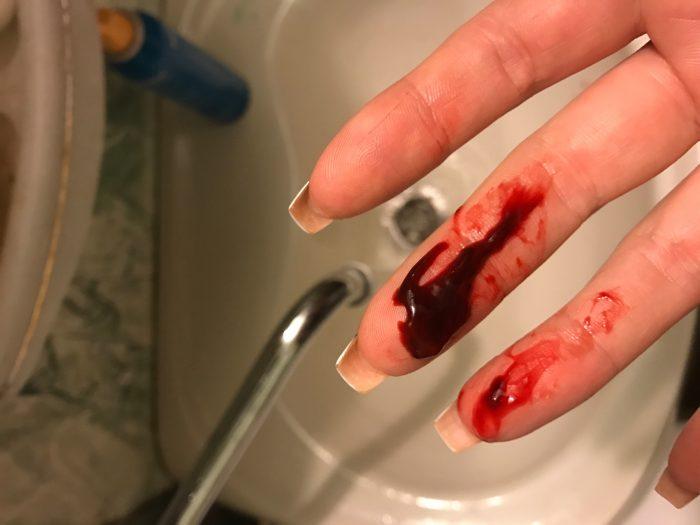 В зависимости от патологии кровяные сгустки могут отличаться по плотности
