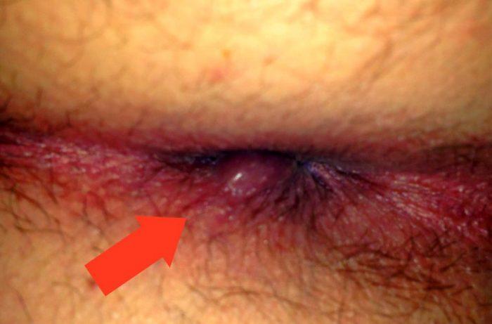Воспаление кожных покровов и слизистой заднего прохода