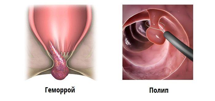 Фото полипа и и геморроидального узла