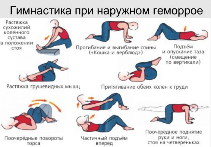 Комплекс упражнений при наружном геморрое