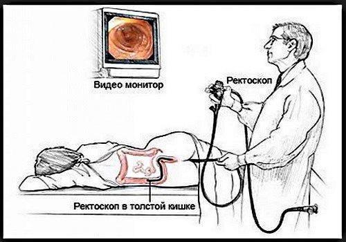Бессимптомный геморрой — диагностика и лечение скрытой патологии