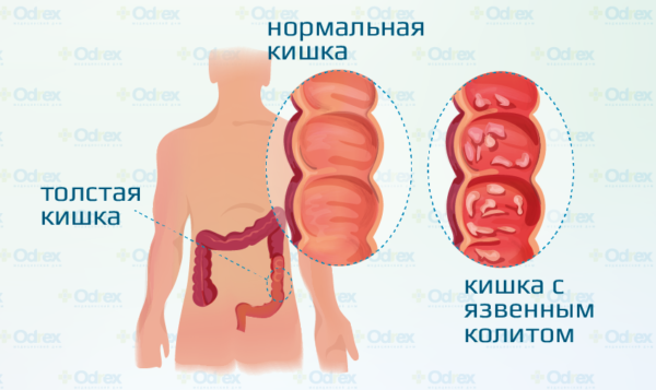 Болит в левом боку ниже ребер спереди