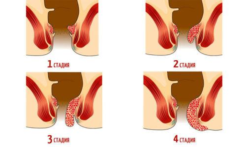 Что такое геморрой 1 стадии или степени и как его лечить?