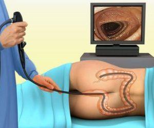 Что такое гиперплазия кишеничка