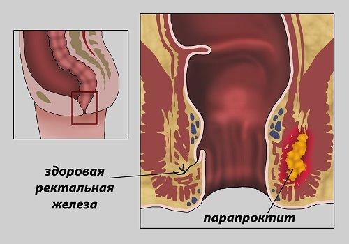 Что такое некроз геморроидального узла, к чему может привести и как его лечить?
