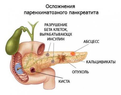Что такое паренхиматозный панкреатит