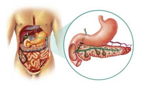 Что такое псевдотуморозный панкреатит