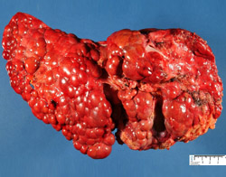 Цирроз печени: патогенез, этиология, признаки