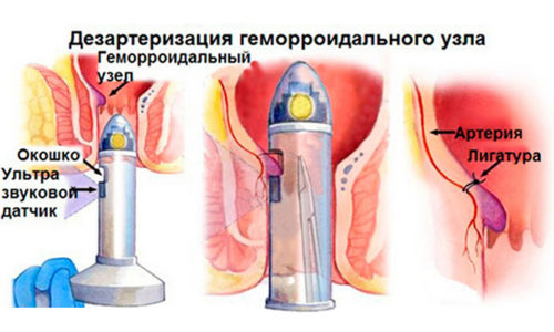 Дезартеризация геморроидальных узлов – современный и эффективный способ лечения геморроя