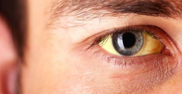 Диагностика и лечение паренхиматозной желтухи