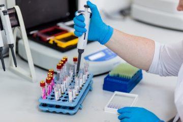 ФГДС под наркозом: можно ли делать с анестезией, как подготовится к процедуре