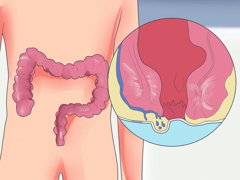 Геморрой и трещина заднего прохода — неприятное сочетание: 10 причин возникновения и 3 метода лечения