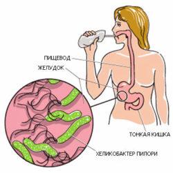 Гиперацидный гастрит: симптомы и лечение, диеты