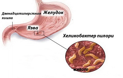 Хронический поверхностный гастрит