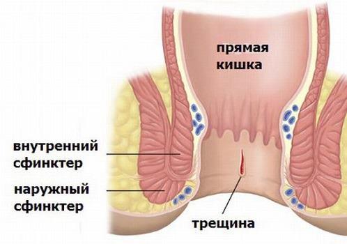 Как лечить геморрой во время беременности?
