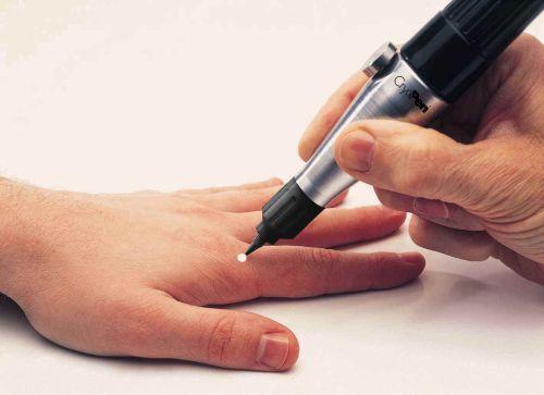 Как можно убрать бородавку с пальца руки?