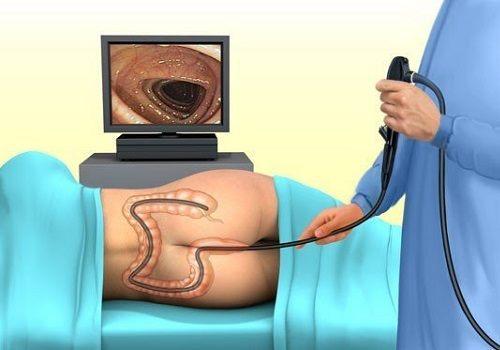 Как подготовиться к колоноскопии кишечника в домашних условиях?