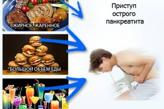 Как снять приступы панкреатита