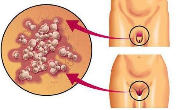 Как уменьшить частые рецидивы генитального герпеса?