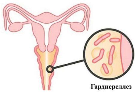 Как влияет гарднерелла на плод, насколько она опасна при беременности?