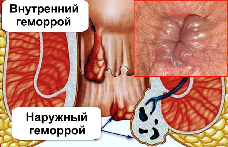 Как выглядит и как лечить начальные стадии геморроя? 2 основные причины, симптомы, фото и методы лечения
