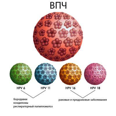 Какие типы ДНК вируса папилломы человека (ВПЧ) наиболее коварные?