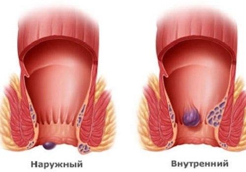 Код геморроя по Международной классификации болезней (МКБ-10)