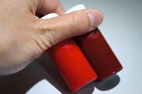 Кровь в стуле при запоре или выделения на туалетной бумаге