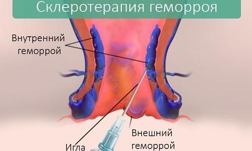 Лечение различных видов геморроя