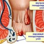 Мази от геморроя для беременных, как часто можно использовать
