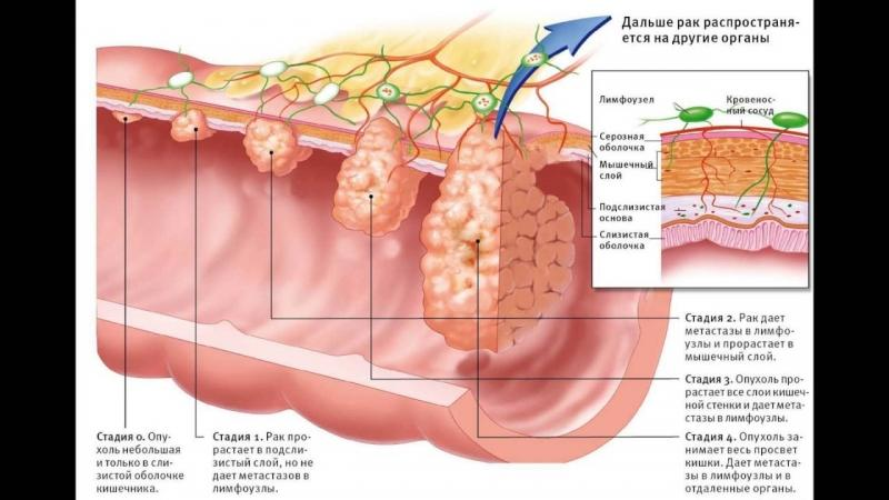 Опухоль около ануса – симптом рака?