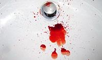 Особенности лечения внутреннего геморроя с кровотечением