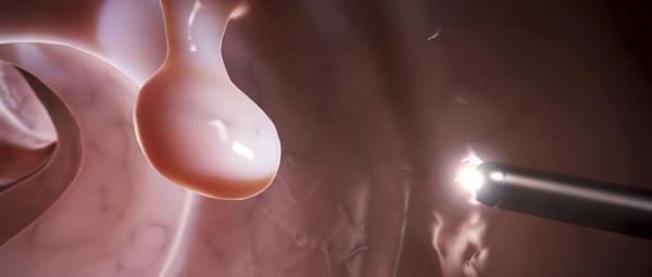 Полип прямой кишки: первые симптомы