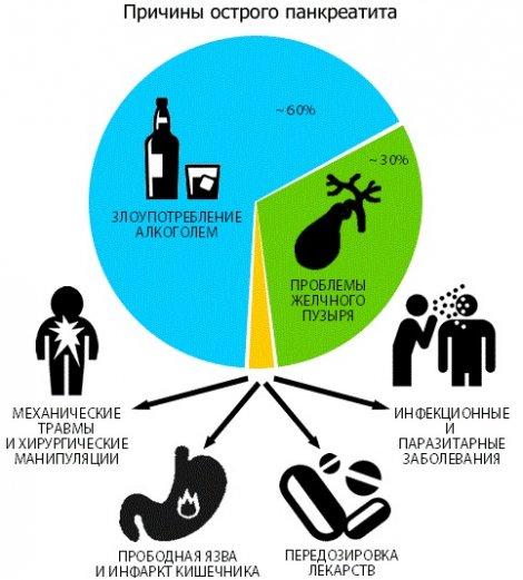 Причины и лечение острого панкреатита