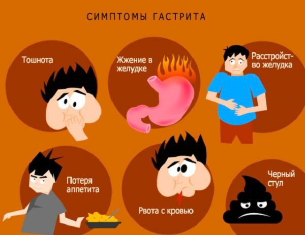 Приступ гастрита: симптомы