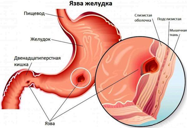 Признаки язвы желудка и гастрита: симптомы