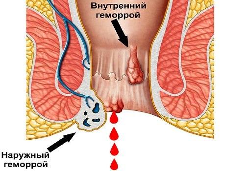 Проявления геморроя: перечень характерных симптомов
