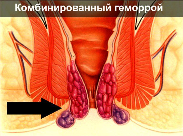 Расшифровка диагнозов и форм геморроя по МКБ 10