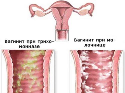 Рыбный запах от выделений у женщин