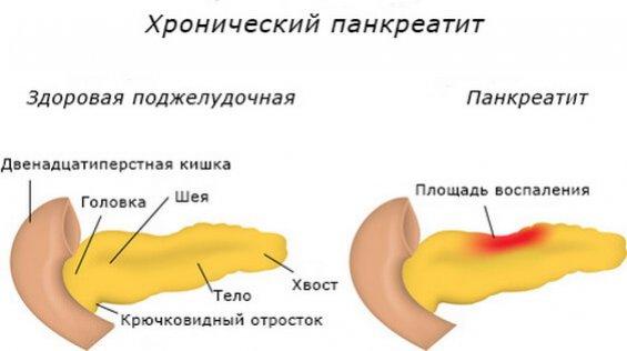 Симптомы и лечение хронического панкреатита у взрослых