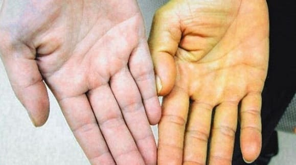 Симптомы и лечение механической желтухи у взрослых и детей