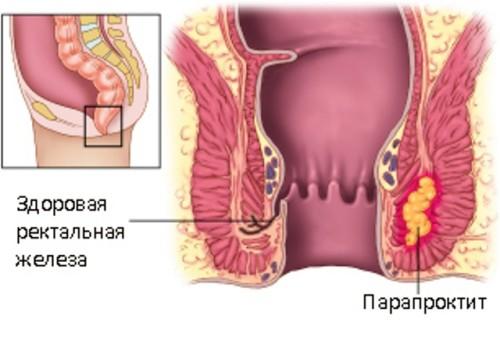 Симптомы парапроктита и лечение в зависимости от фазы