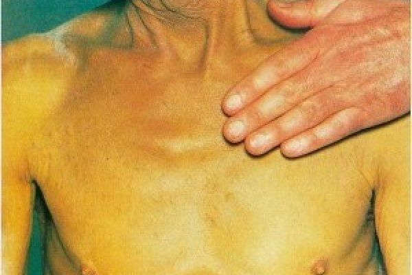 Симптомы вирусного гепатита В (Б)
