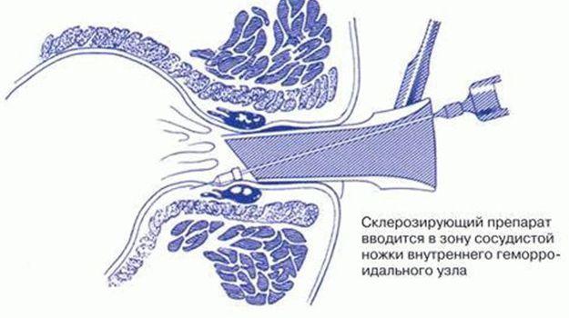 Склеротерапия геморроидальных узлов: что это такое и когда назначается?