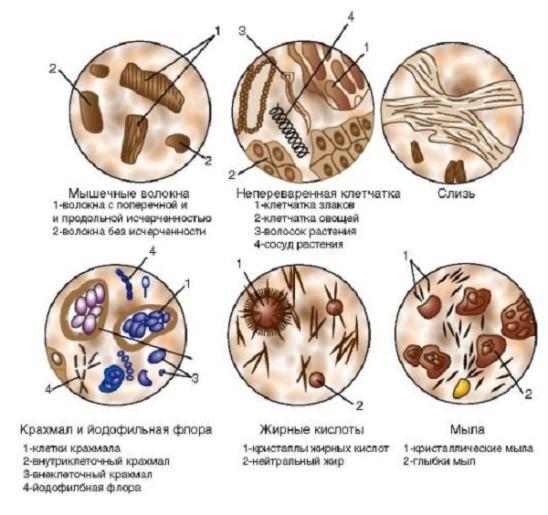 Слизь в кале у грудничка: основные причины и методы лечения
