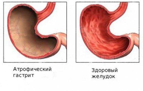 Способы лечения хронического атрофического гастрита